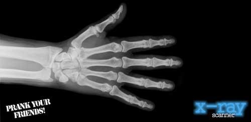 X-Ray Scanner v1.7.5