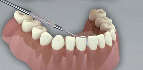 CGM Dental Consult v1.2 + data