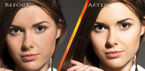 Face Blemishes Removal v1.5